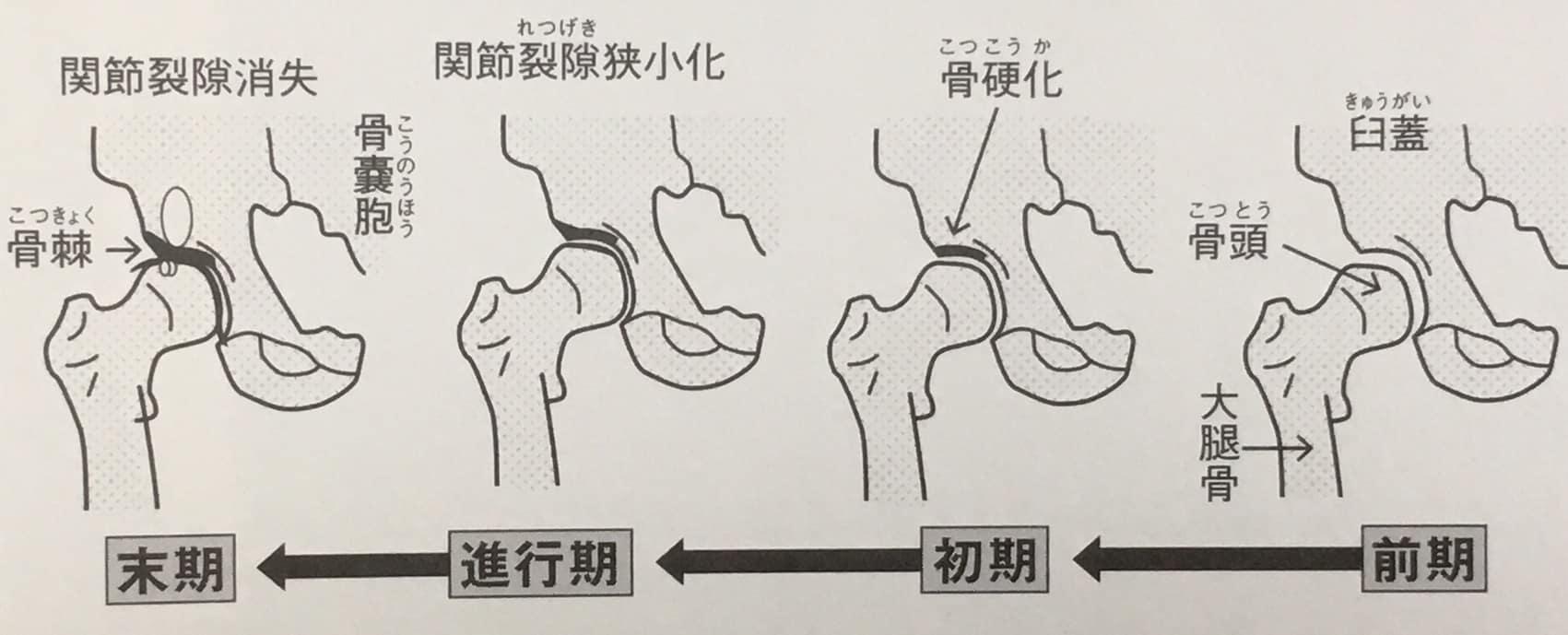 変股症の一般的な病期