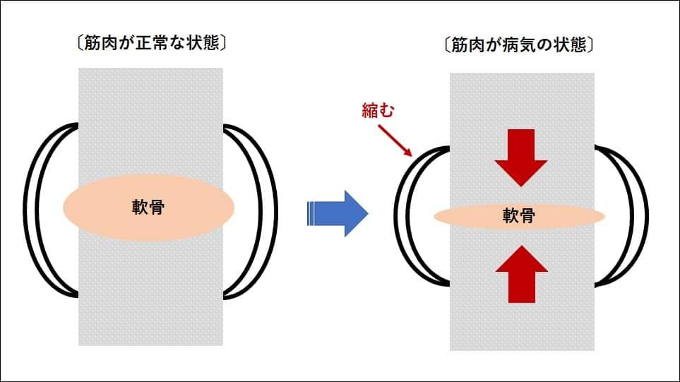 股関節の模式図
